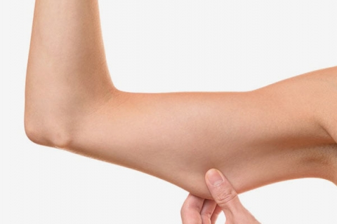 Thigh Lifts and Arm Lifts from Parkway Plastic Surgery in Kalamazoo