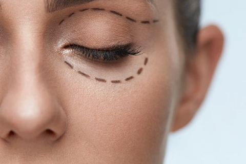 An Overview of Eyelid Surgery (Blepharoplasty) Recovery
