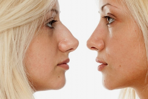Facelifts and Rhinoplasty in Kalamazoo from Parkway Plastic Surgery