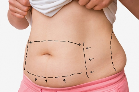 How to Maintain your Tummy Tuck Results
