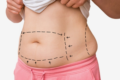 Body Contouring from Parkway Plastic Surgery in Kalamazoo