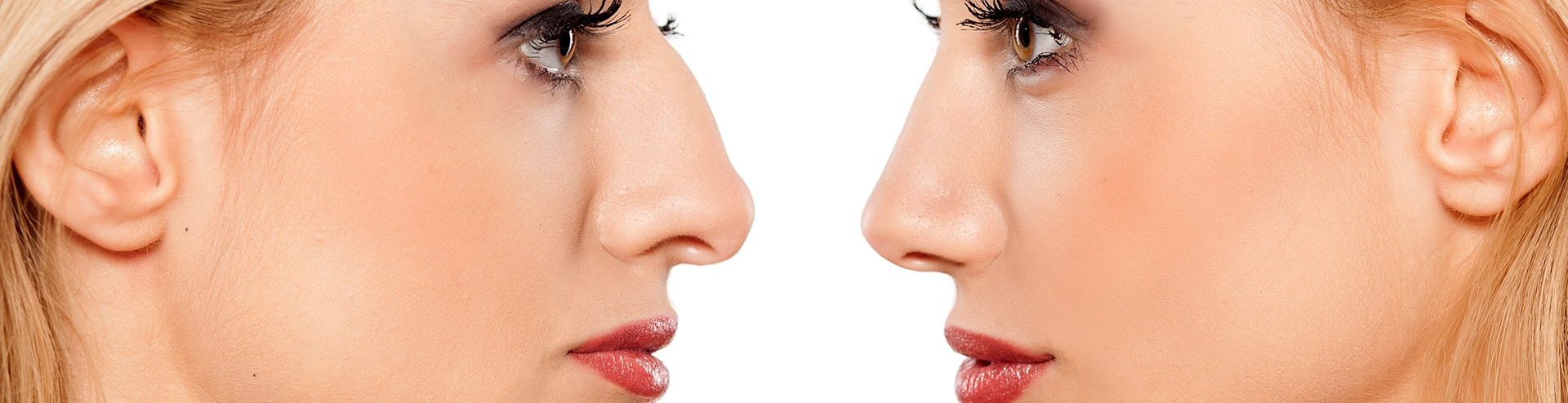 Facial Cosmetic Procedures